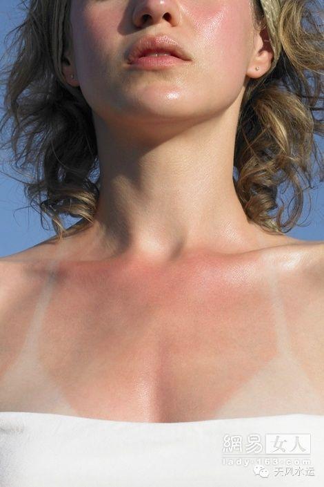 水上运动,紫外线,皮肤 水上运动晒伤后的处理方法 0.jpg